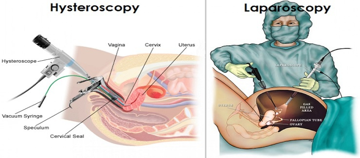 Endoscopy- Diagnostic & Operative Hysteroscopic & Laparoscopic Surgeries